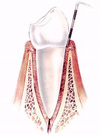 Parodontalbehandlung
